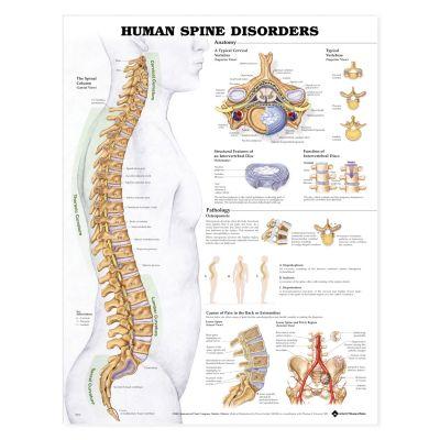 Laminated Anatomical Chart (Spine Disorder)